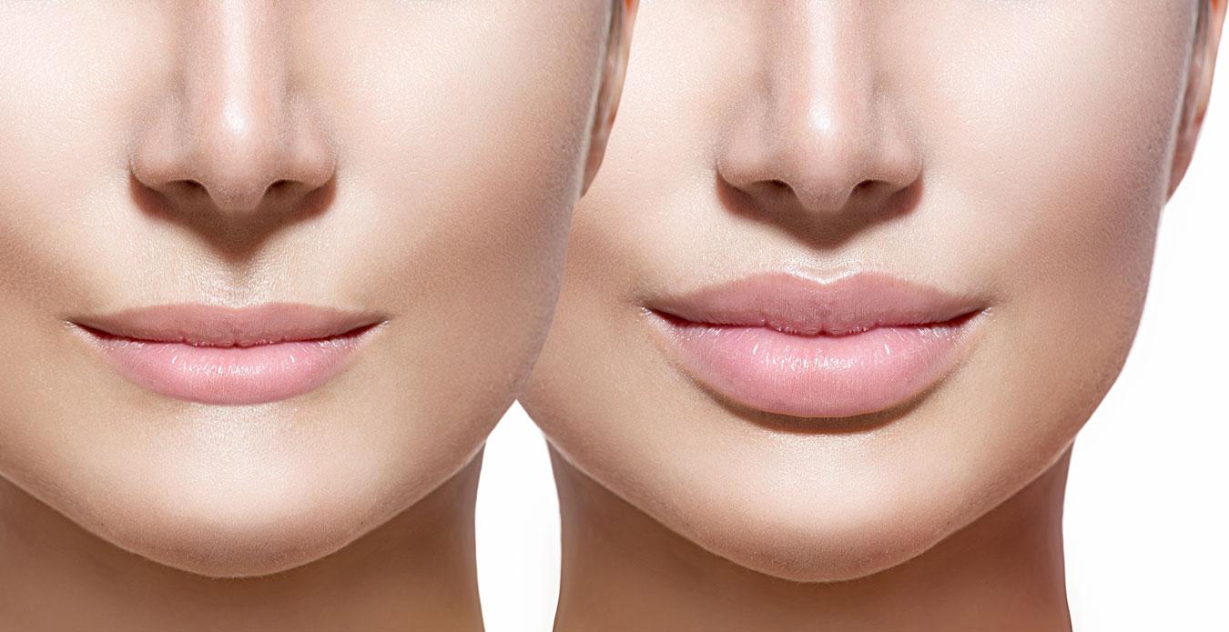 Aumento y perfilado de labios en Castellón